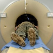VA Recommended CT Scans Mesothelioma